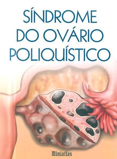 Síndrome do ovário poliquístico (Luis Raúl Lépori)
