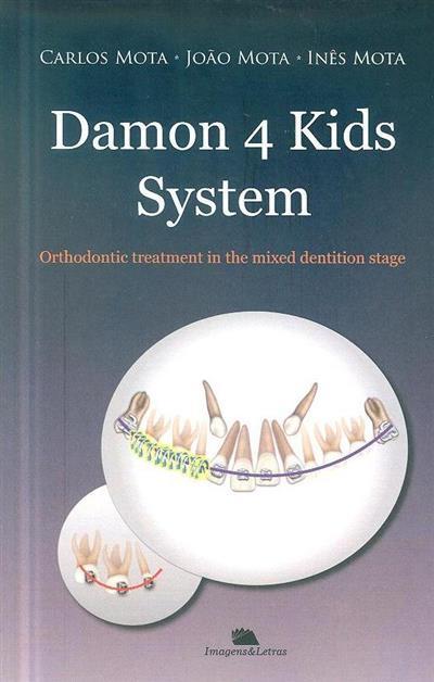 Damon 4 kids system (Carlos Mota, João Mota, Inês Mota)